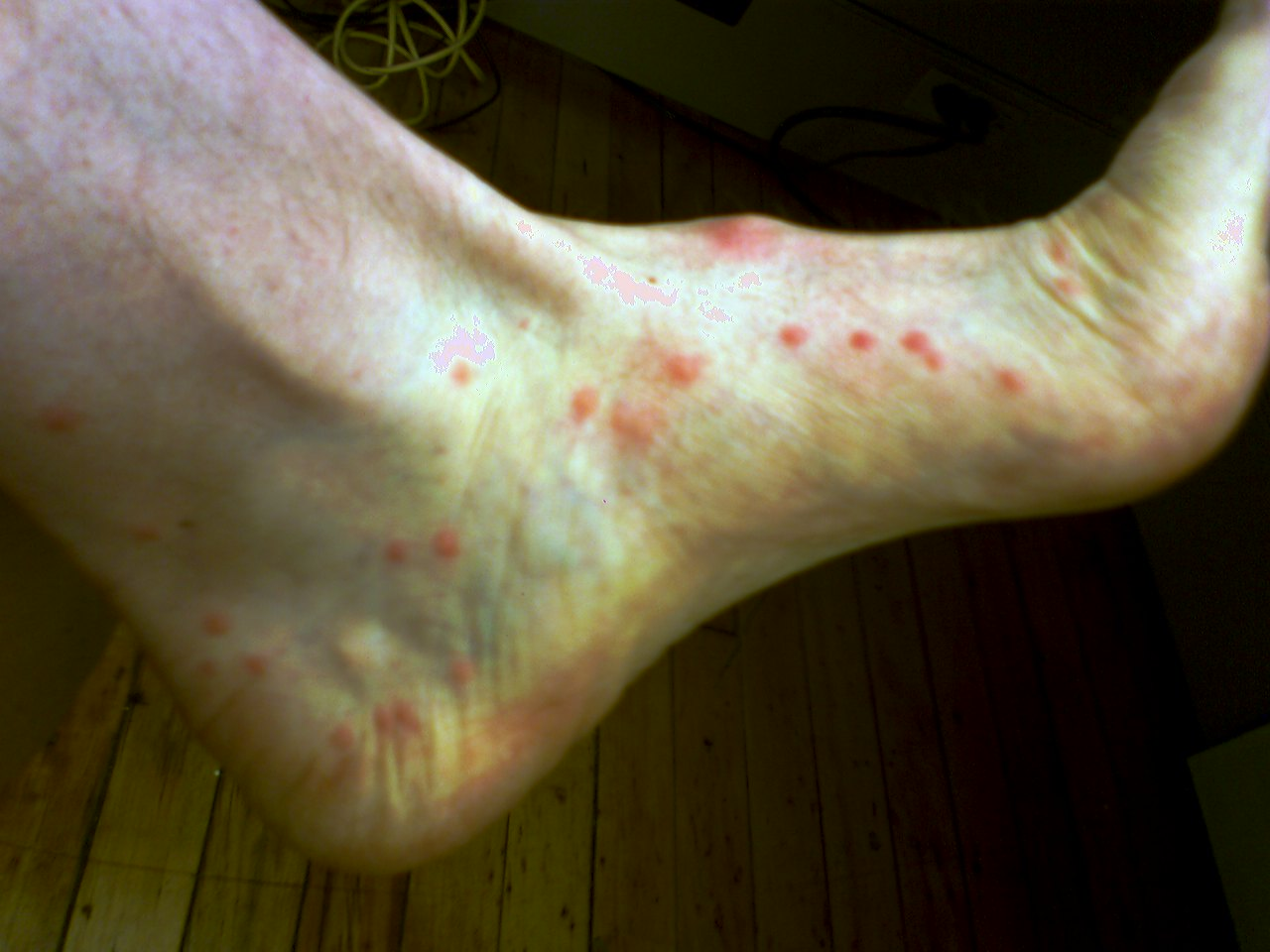 Flea Bites On Ankles - Doctor answers on HealthTap
