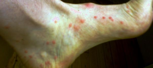 sand flea bites